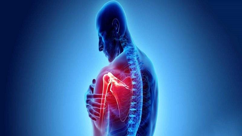 درمان آرتروز شانه و راههای تشخیص این عارضه | درمان آرتروز شانه