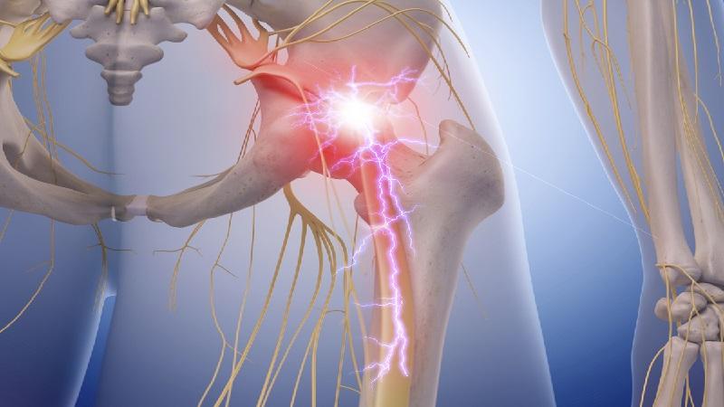 برای بهبود و درمان سیاتیک استراحت لازم است یا انجام ورزش