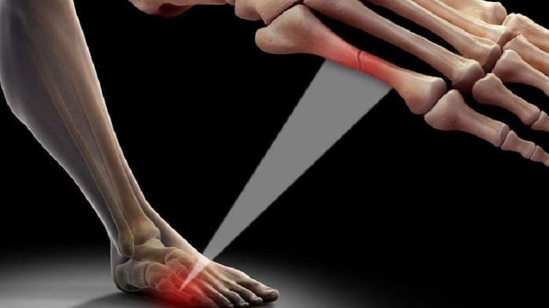ترک یا شکستگی استخوان | درمان دیسک کمر اصفهان