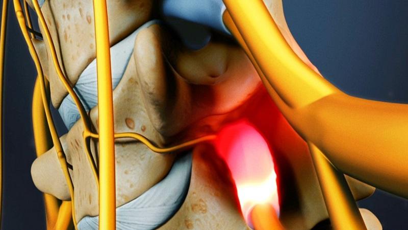 تشخیص تنگی کانال نخاعی