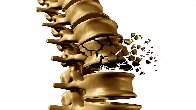 تشخیص و درمان شکستگی کمر | درمان دیسک کمر اصفهان