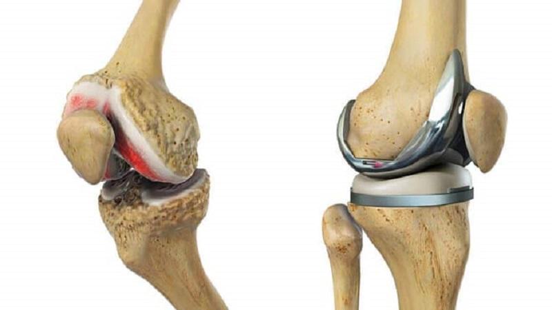 جراحی آرتروپلاستی چیست؟ | درمان دیسک کمر اصفهان