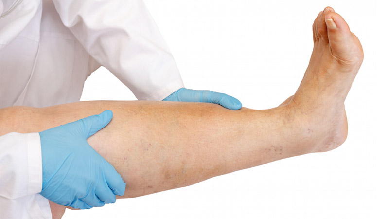 درمان دیسک کمر اصفهان درمان درد ساق پا