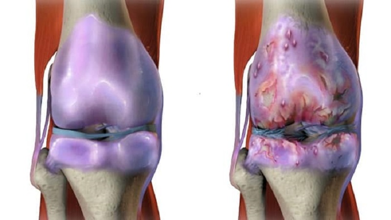 علائم انواع آرتروز زانو | درمان دیسک کمر اصفهان