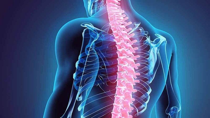 شکستگی کمر یا ستون فقرات | درمان دیسک کمر اصفهان