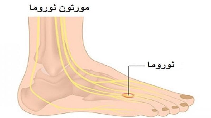 درمان دیسک کمر اصفهان | مورتون نوروما چیست