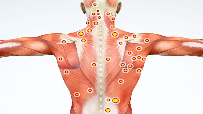 گره عضلانی و درمان آن | درمان دیسک کمر اصفهان