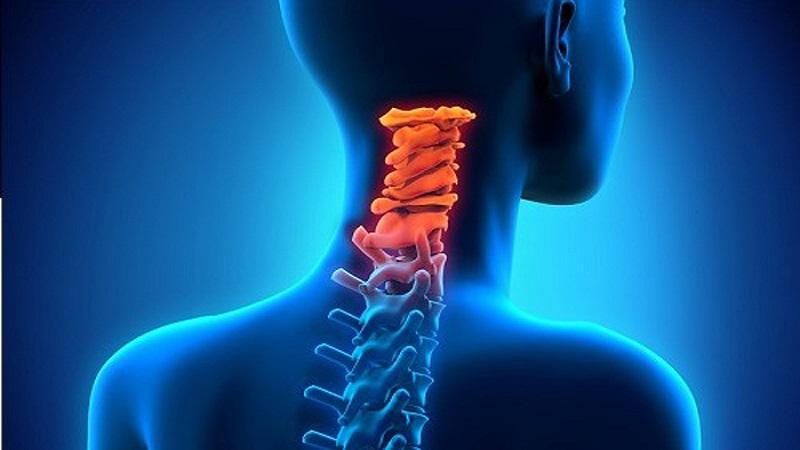 علت صدا دادن مفصل گردن و علائم آن ناشی از چیست؟ | درمان دیسک کمر اصفهان