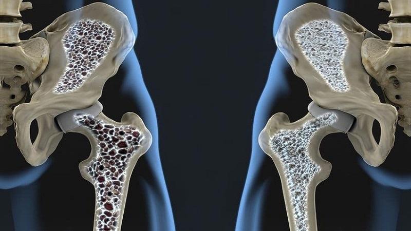 پوکی استخوان | درمان دیسک کمر اصفهان